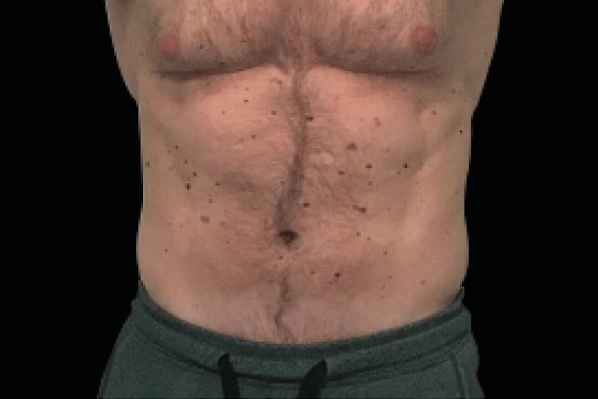 Emsculpt body after